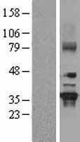 NBL1-11165 - GNB2 Lysate