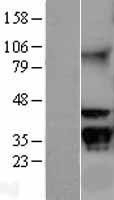NBL1-11166 - GNB2L1 Lysate