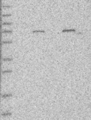 NBP1-81621 - GNE / GLCNE