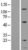 NBL1-11176 - GNG5 Lysate