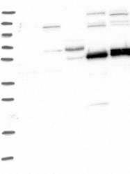 NBP1-89751 - TRIM7 / RNF90