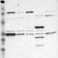 NBP1-83355 - GNPDA1