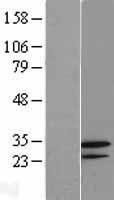 NBL1-11189 - GNPDA2 Lysate
