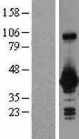 NBL1-11191 - GNPTG Lysate