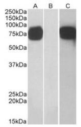 NB300-851 - Golgi membrane protein 1 / GOLM1