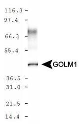 NBP1-50627 - Golgi membrane protein 1 / GOLM1