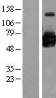 NBL1-11198 - GOLPH2 Lysate