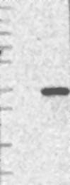 NBP1-83351 - GOSR1 / GS28