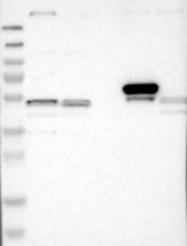 NBP1-86070 - GP2 / ZAP75