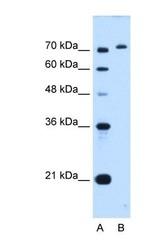 NBP1-62435 - GPAA1 / GAA1