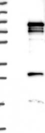 NBP1-82301 - GPATCH3