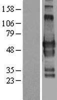 NBL1-11218 - GPBP1L1 Lysate