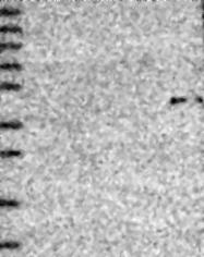 NBP1-89741 - PRLHR / GPR10