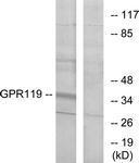 NBP1-70327 - GPR119