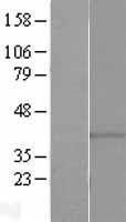 NBL1-11254 - GPCR GPR146 Lysate