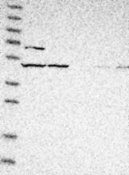 NBP1-87287 - GPR150