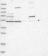 NBP1-90231 - GPR182 / ADMR