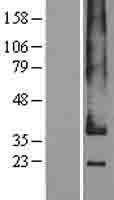 NBL1-11268 - GPCR GPR182 Lysate
