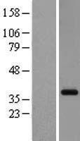 NBL1-11272 - GPCR GPR26 Lysate