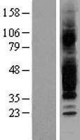 NBL1-10681 - GPCR GPR40 Lysate