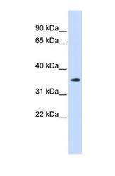 NBP1-60013 - GPR6