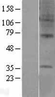 NBL1-11286 - GPCR GPR6 Lysate