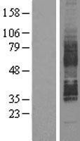 NBL1-11298 - GPCR GPR85 Lysate