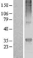 NBL1-13224 - GPCR MRGE Lysate