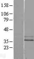 NBL1-13226 - GPCR MRGX2 Lysate