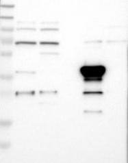 NBP1-89853 - GPI7 / PIGG