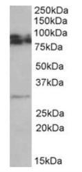 NBP1-68861 - GPM6A