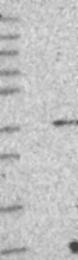 NBP1-88896 - GPN2 / ATPBD1B