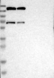 NBP1-81437 - GPR158