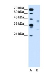 NBP1-60122 - GPR161