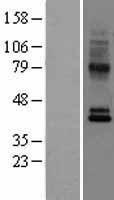 NBL1-08888 - GPR2/CCR10 Lysate