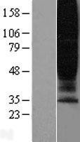 NBL1-11282 - GPR45 Lysate