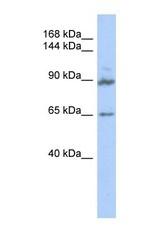 NBP1-56710 - GPRASP2