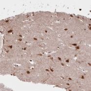 NBP1-83330 - GPRIN1