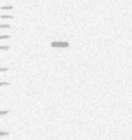 NBP1-89110 - Alanine aminotransferase 1 (ALT1)