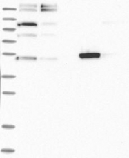 NBP1-89111 - Alanine aminotransferase 1 (ALT1)