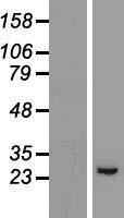 NBL1-11319 - GPX8 Lysate