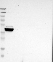 NBP1-81431 - GRAMD1B
