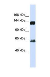 NBP1-58306 - RAPGEF1 / GRF2