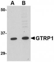 NBP1-76900 - GRTP1 / TBC1D6