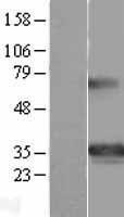 NBL1-11357 - GSC Lysate