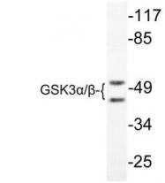 NBP1-19364 - GSK3 alpha