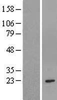 NBL1-11372 - GSTM1 Lysate