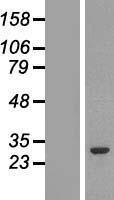 NBL1-11373 - GSTM2 Lysate