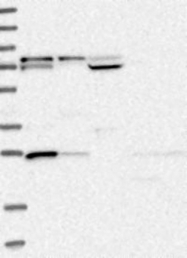 NBP1-83323 - GSTM3 / GST5