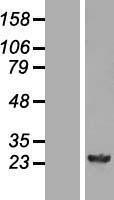 NBL1-11374 - GSTM4 Lysate